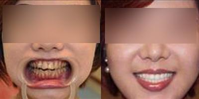 牙齿美白让机会不再从身边溜走