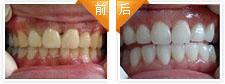 黄牙美白治疗