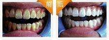 烟渍牙美白治疗