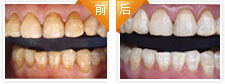 氟斑牙美白治疗