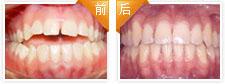 开颌畸形正畸治疗