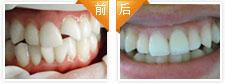 牙缺损烤瓷修复