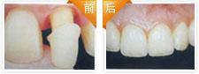 全瓷牙修复治疗